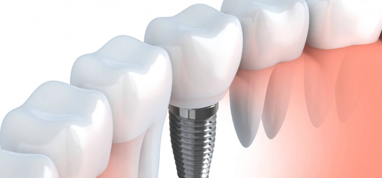 dental implants in Parramatta