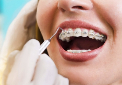 orthodontist in Westmead
