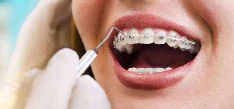 orthodontist in Westmead