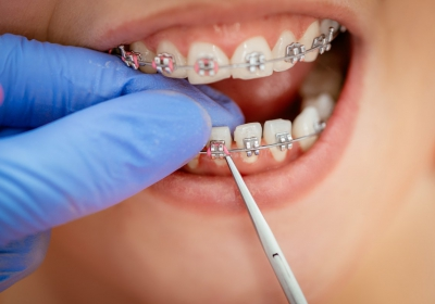 Long lasting Braces fitting service in Parramatta