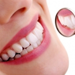 What Are the Procedure of Dental Implants?