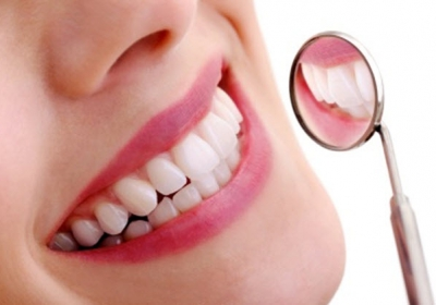 caring-for-dental-implants