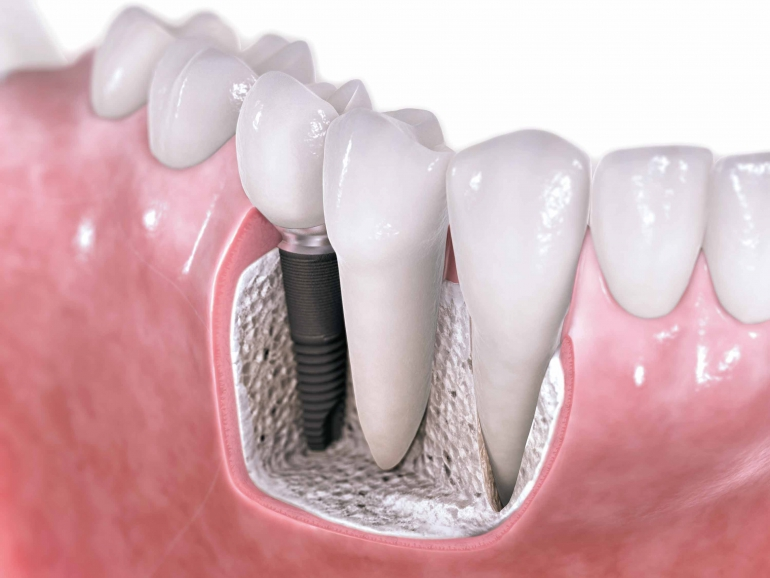 Dental-implants-3D