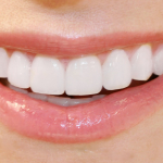 How Dental Veneers Are Helpful In Enhancing Your Aesthetics?
