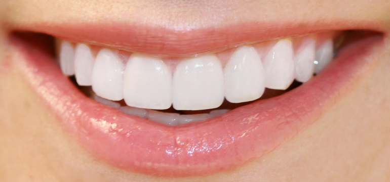 . Often the teeth are chipped or crooked that can create a problem when you smile or communicate with others and can lead to losing your confidence. It may also become difficult to chew or eat food items for you and you may face discomfort. To deal with this situation, your dentist in cronulla will treat you by applying some veneers.