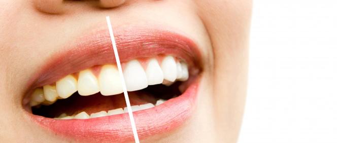 teeth whitening Bankstown